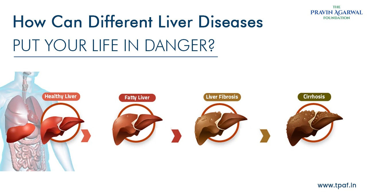pediatric liver disease