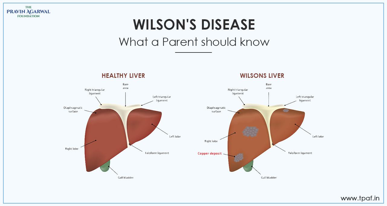 wilson's liver disease